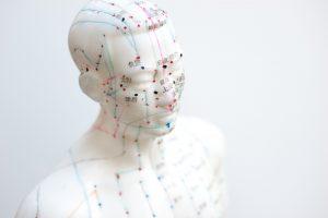 acupuntura ansiedad