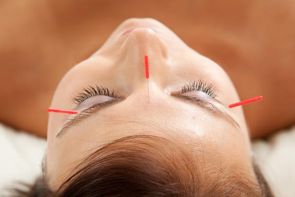 acupuntura insomnio