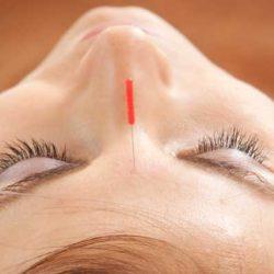 3 acupunturas que te ayudaran este verano