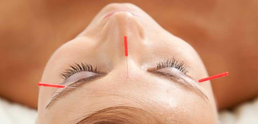 3 terapias de acupuntura que te ayudaran este verano