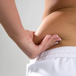 Acupuntura para adelgazar: un tratamiento eficaz