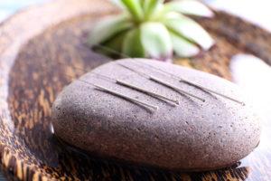 Tipos de agujas utilizadas en acupuntura