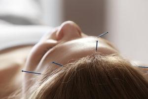 Tratar la ansiedad por comer con acupuntura