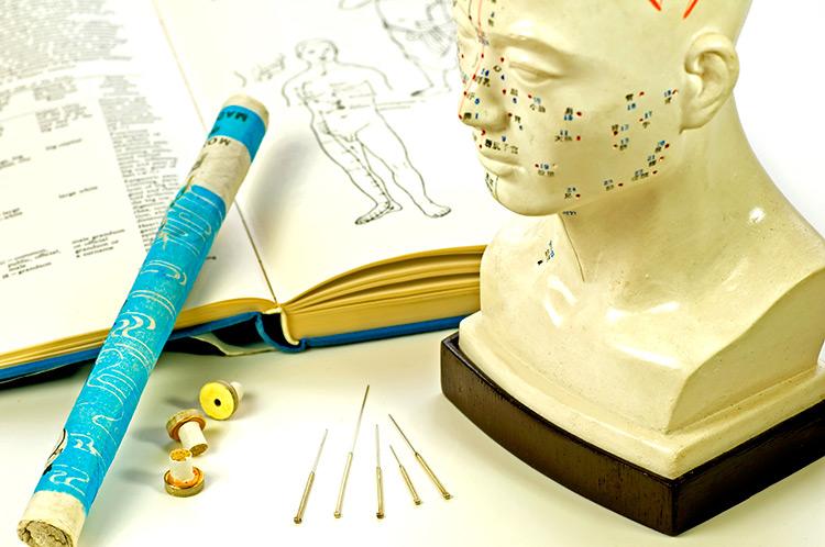 Uso de la acupuntura para el dolor