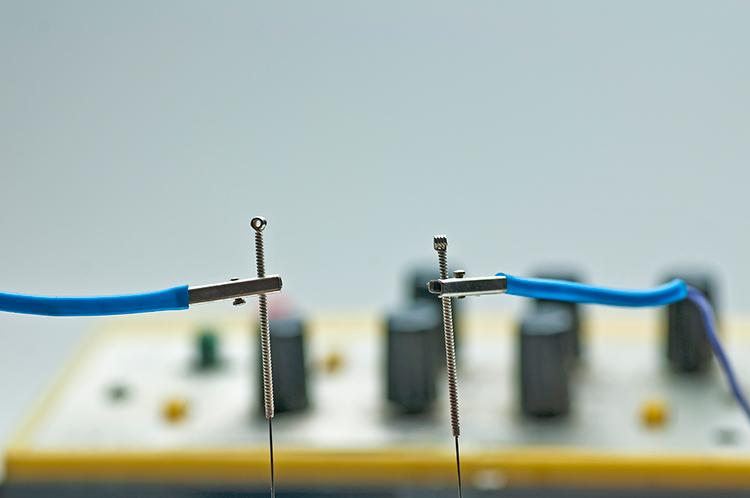 Qué es la electroacupuntura
