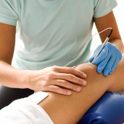 Electroacupuntura para el tratamiento de la ciática