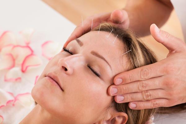 Acupuntura para el dolor provocado por cefalea de racimo