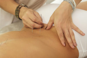 Tratamiento de acupuntura para el dolor lumbar
