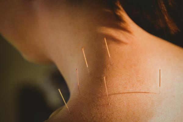 Tratamiento tendinopatía con acupuntura